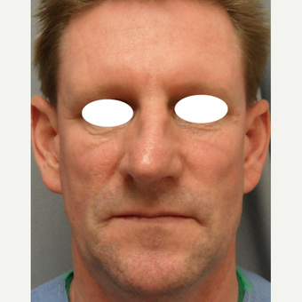 45-54 year old man treated with Septoplasty and Rhinoplasty before 3108779