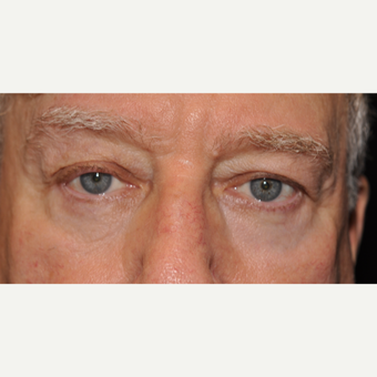 75 and up year old man treated with Eyelid Surgery after 3056442