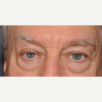75 and up year old man treated with Eyelid Surgery before 3056442