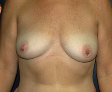 Breast Implants before 3545003