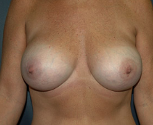Breast Implants after 3545003