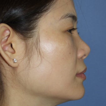 25-34 year old woman treated with Revision Rhinoplasty before 1621130