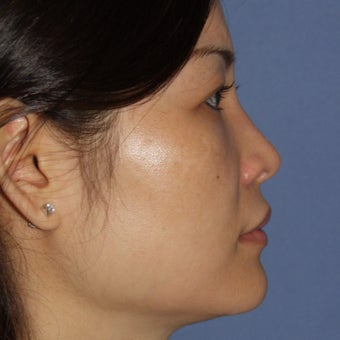 25-34 year old woman treated with Revision Rhinoplasty after 1621130