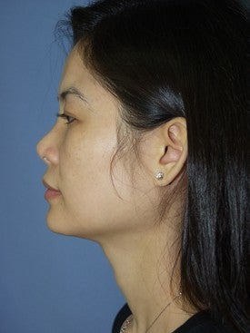 25-34 year old woman treated with Revision Rhinoplasty 1621130