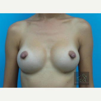 25-34 year old woman treated with Mentor Breast Implants after 3725976