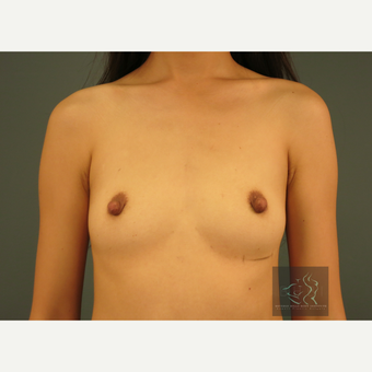 25-34 year old woman treated with Mentor Breast Implants before 3725976