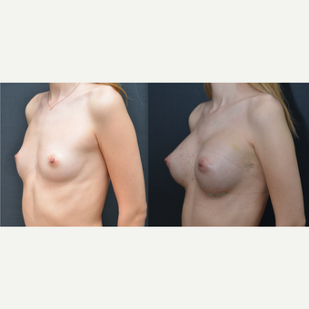 18-24 year old woman treated with Breast Augmentation before 3238754