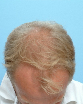 35-44 year old man treated with FUE Hair Transplant before 1728041