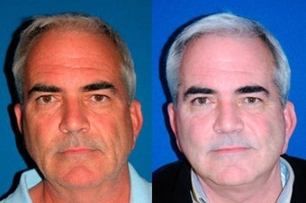 54 year old man treated with Facelift before 3004814