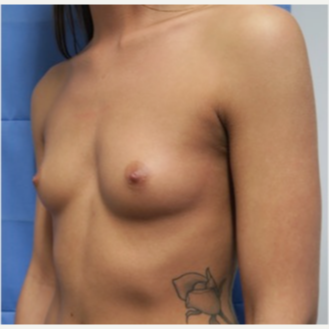 18-24 year old woman treated with Breast Implants before 3318294
