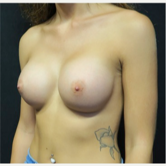 18-24 year old woman treated with Breast Implants after 3318294