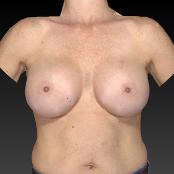55-64 year old woman treated with Breast Augmentation after 3783948