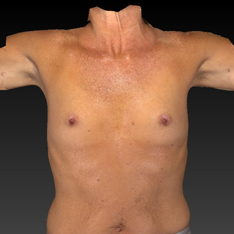 55-64 year old woman treated with Breast Augmentation before 3783948
