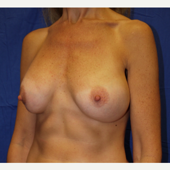 35-44 year old woman treated with Breast Lift before 3002616
