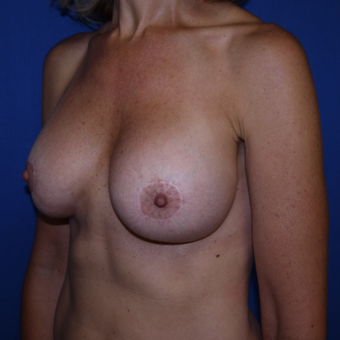 35-44 year old woman treated with Breast Lift after 3002616