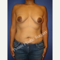 35-44 year old woman treated with Breast Lift with Implants before 3711818
