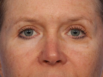 Eyelid Surgery after 280834