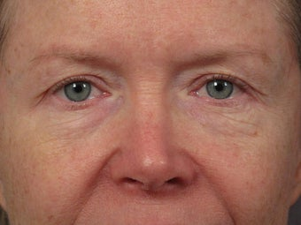 Eyelid Surgery before 280834