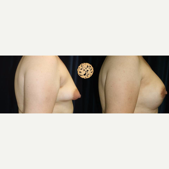 35-44 year old woman treated with Breast Lift with Implants before 3283379
