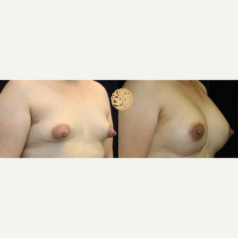 35-44 year old woman treated with Breast Lift with Implants after 3283379