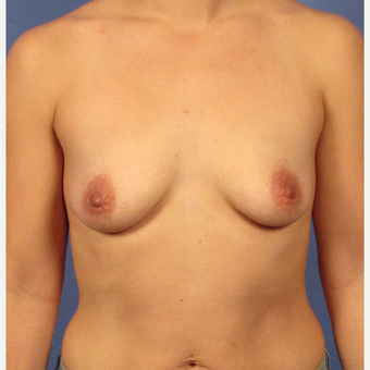 25-34 year old woman treated with Breast Augmentation before 3106240