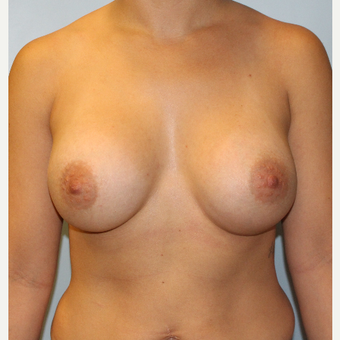 25-34 year old woman treated with Breast Augmentation after 3106240