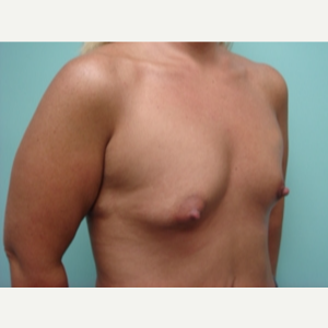 45-54 year old man treated with Breast Augmentation before 3168062