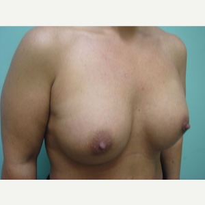 45-54 year old man treated with Breast Augmentation after 3168062