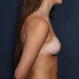 18-24 year old woman treated with Breast Augmentation (view 2 of 2) before 3037181