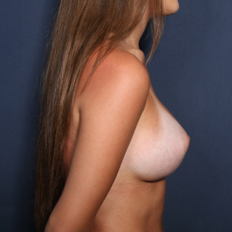 18-24 year old woman treated with Breast Augmentation (view 2 of 2) after 3037181