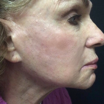 75 and up year old woman treated with Skin Rejuvenation