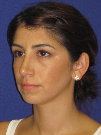 Rhinoplasty after 2487548
