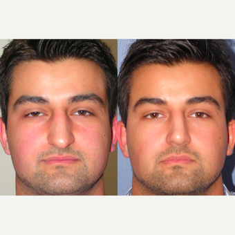 35-44 year old man treated with Rhinoplasty before 3521576