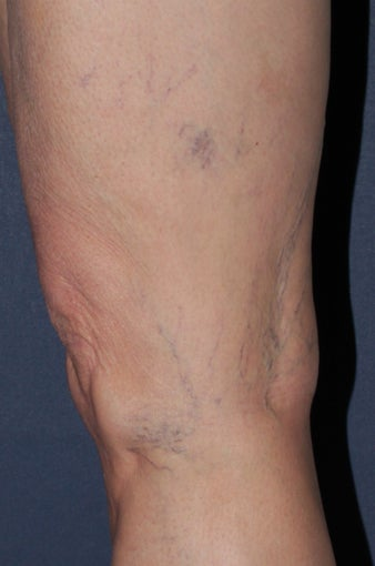 62 year old female treated with Sclerotherapy for Leg Veins before 986684