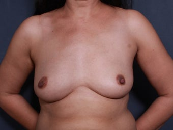 43 y/o Breast Augmentation before 1375641