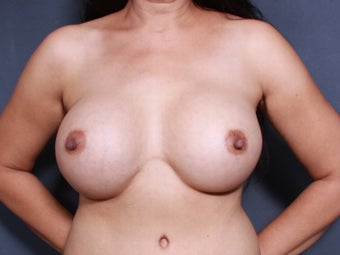 43 y/o Breast Augmentation after 1375641