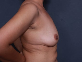43 y/o Breast Augmentation 1375641