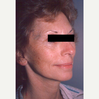 65-74 year old woman treated with Chemical Peel before 3543473