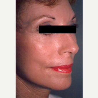 65-74 year old woman treated with Chemical Peel after 3543473