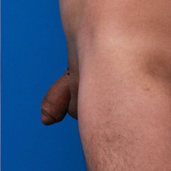 35-44 year old man treated with Penis Enlargement after 3179453