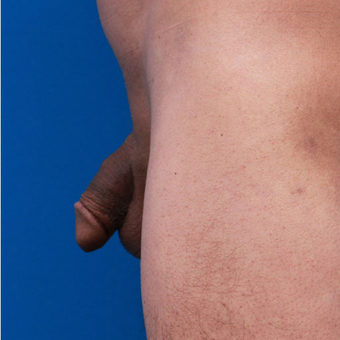 35-44 year old man treated with Penis Enlargement before 3179453