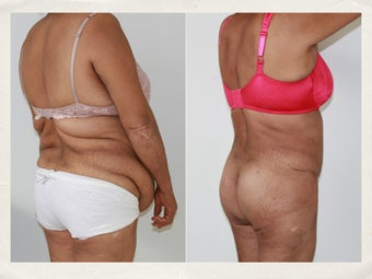 Liposculpture and tummy tuck 1218234