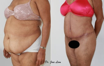 Liposculpture and tummy tuck after 1218234