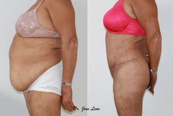 Liposculpture and tummy tuck before 1218234
