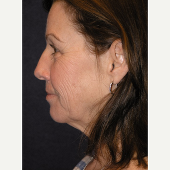 55-64 year old woman treated with Facelift before 3466660