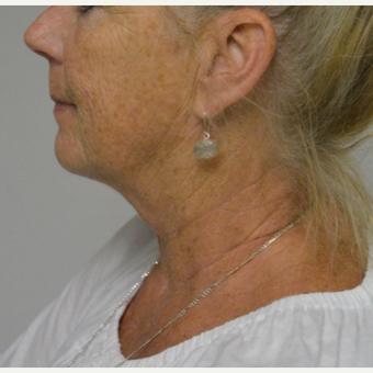 55-64 year old woman treated with Kybella after 3213837