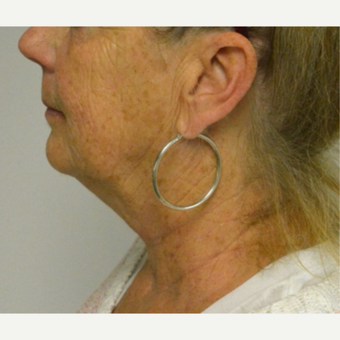 55-64 year old woman treated with Kybella before 3213837
