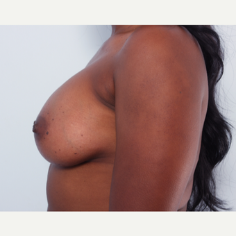 Breast Augmentation after 3345113