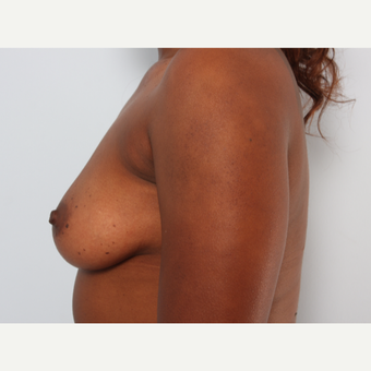 Breast Augmentation before 3345113
