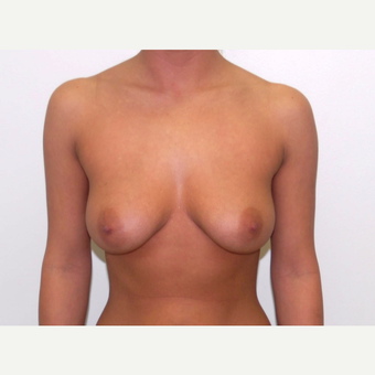 25-34 year old woman treated with Breast Augmentation before 3377948